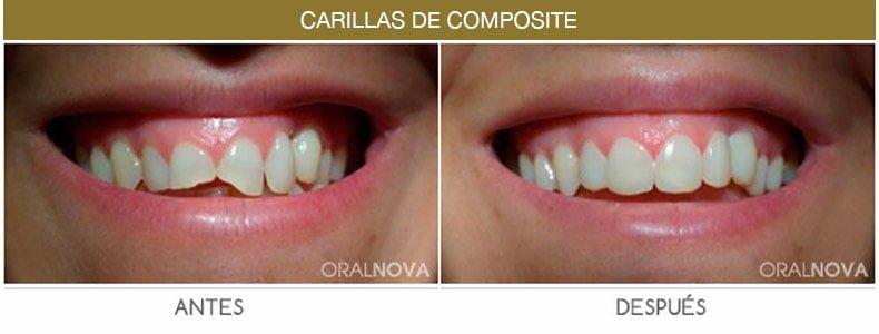 estetica-dental-en-cordoba