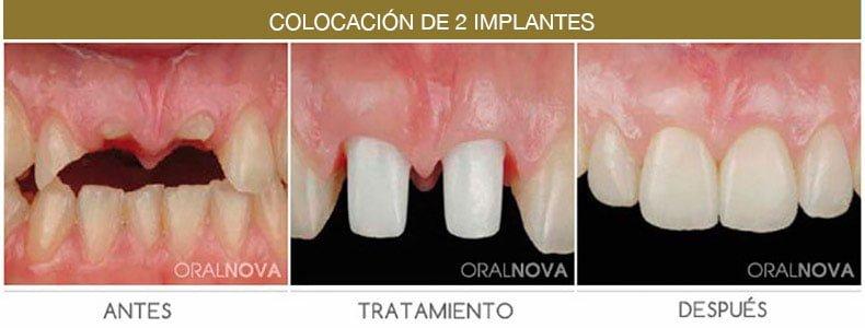 Colocación de implantes en Córdoba