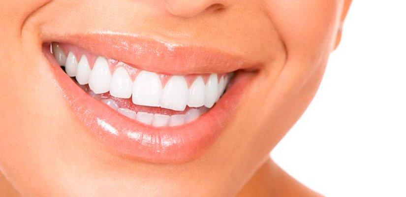 Estética dental en Córdoba