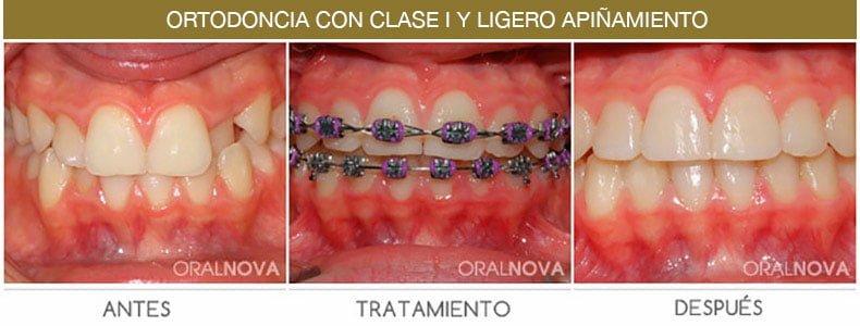 Ortodoncia Clase 1 en Córdoba