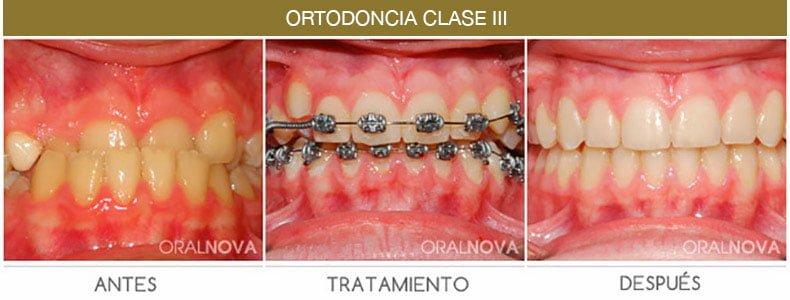 Ortodoncia Clase 3 en Córdoba