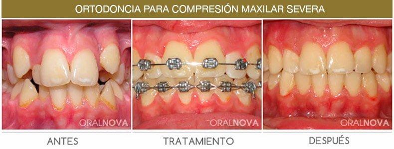 Ortodoncia Compresión Maxilar en Córdoba
