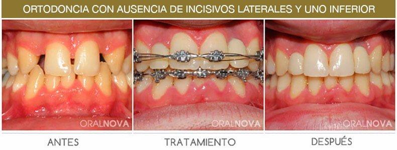 Ortodoncia Incisivos en Córdoba